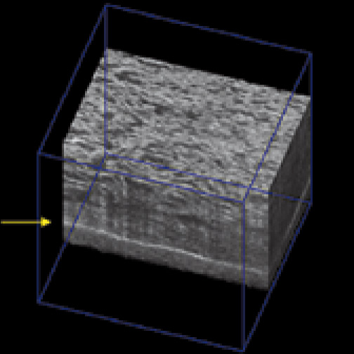 Cells in 3D scaffold