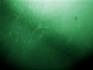Microaspiration Image using Two Cameras